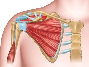Le cause del dolore alla spalla