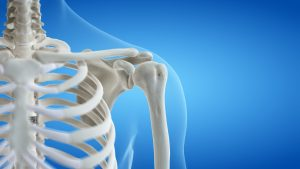 Trattamento della spalla dolorosa